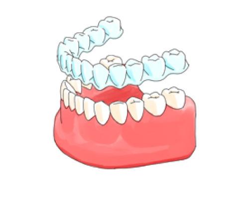 インビザラインで歯がうごくしくみ
