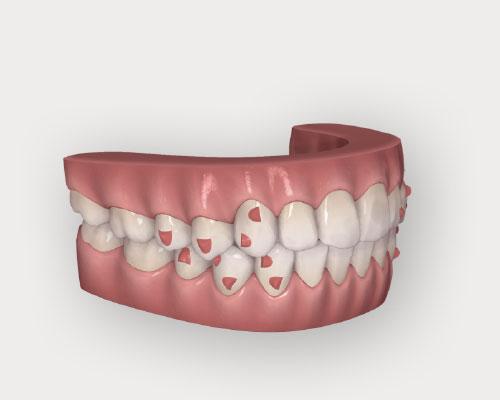 歯並びを視覚的に確認