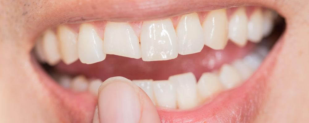 自分の歯並びが矯正可能か事前診断